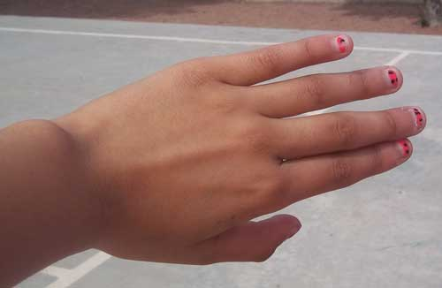 Eslie's picture of her hand